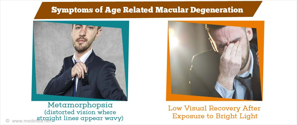 Symptoms of Age Related Macular Degeneration