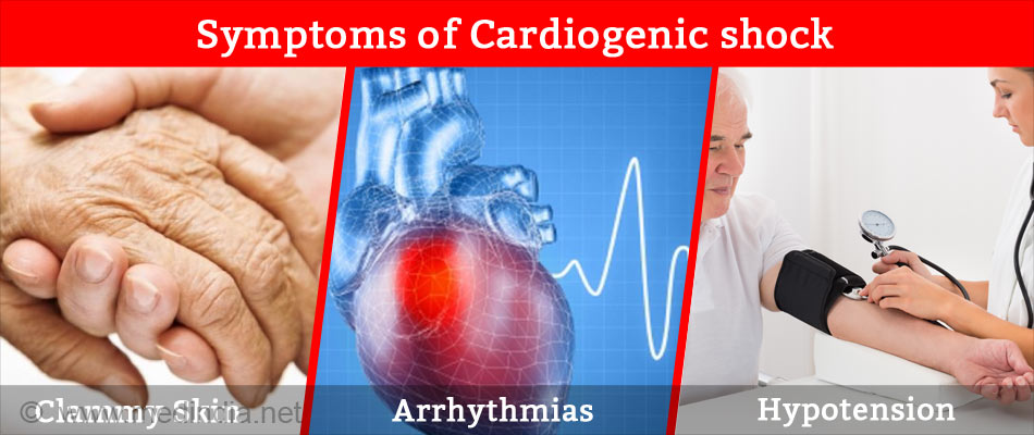 Symptoms of Cardiogenic Shock