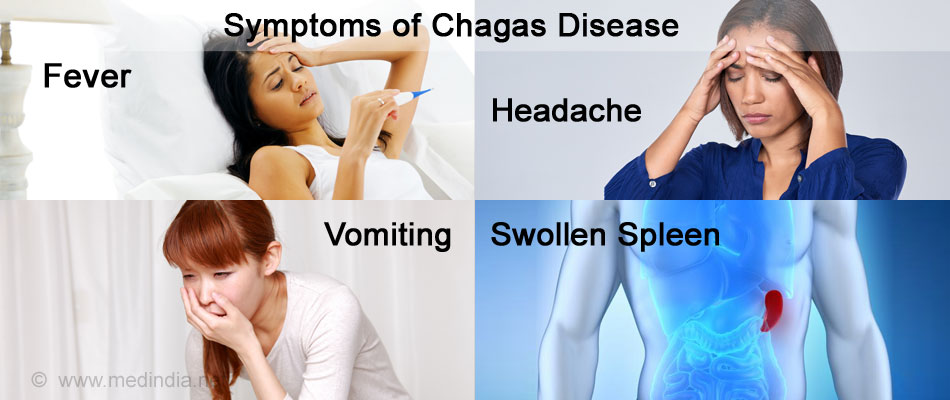 Symptoms of Chagas Disease