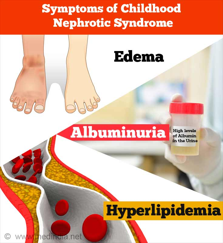 Symptoms Of Childhood Nephrotic Syndrome