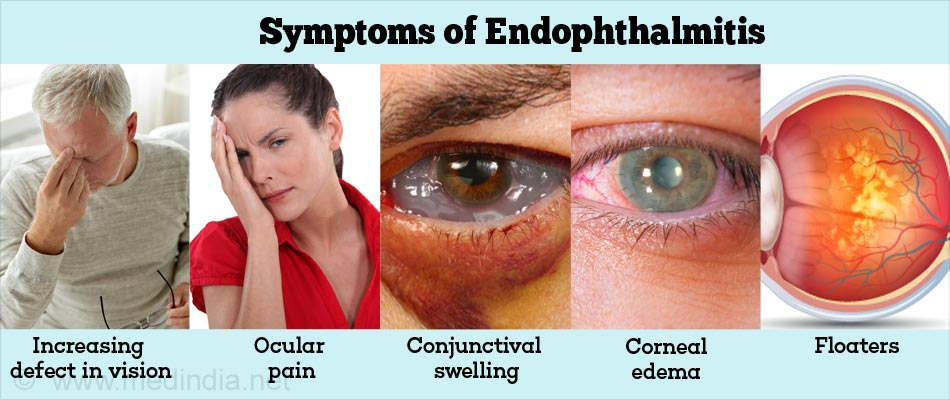 Symptoms of Endophthalmitis
