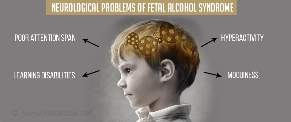 an introduction to the issue of fetal alcohol syndrome Problems associated with fetal alcohol syndrome don't end when trust was a big issue when i first came but for young adults with fetal alcohol syndrome.