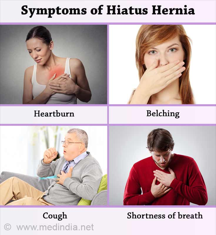 Symptoms of Hiatus Hernia