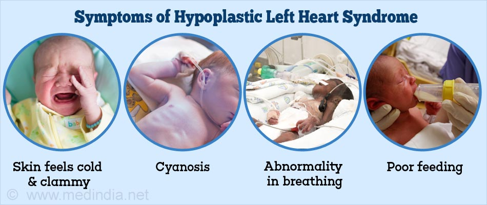 Symptoms of Hypoplastic Left Heart Syndrome