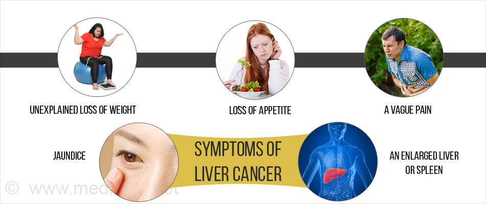 liver cancer - types, causes, symptoms, diagnosis, treatment, Human Body