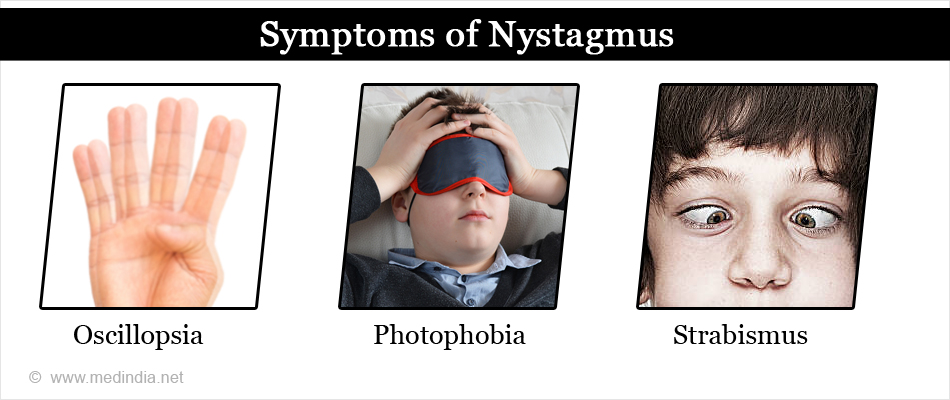 Symptoms of Nystagmus