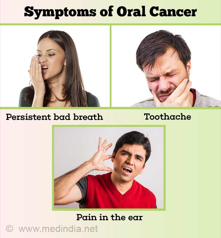 Symptoms of Oral Cancer
