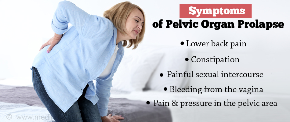 Symptoms of Pelvic Organ Prolapse