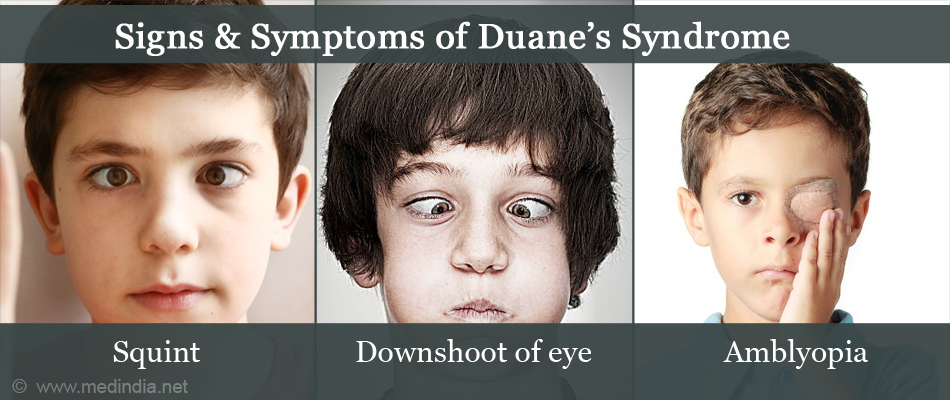 Signs & Symptoms of Duane's syndrome