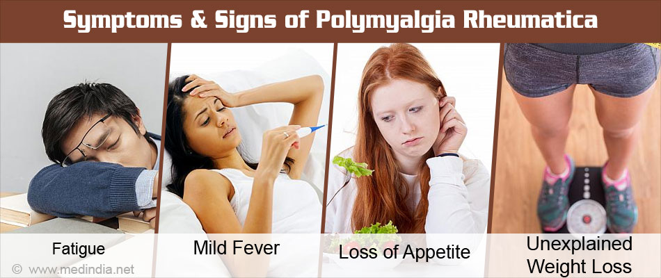 Symptoms & Signs of Polymyalgia Rheumatica