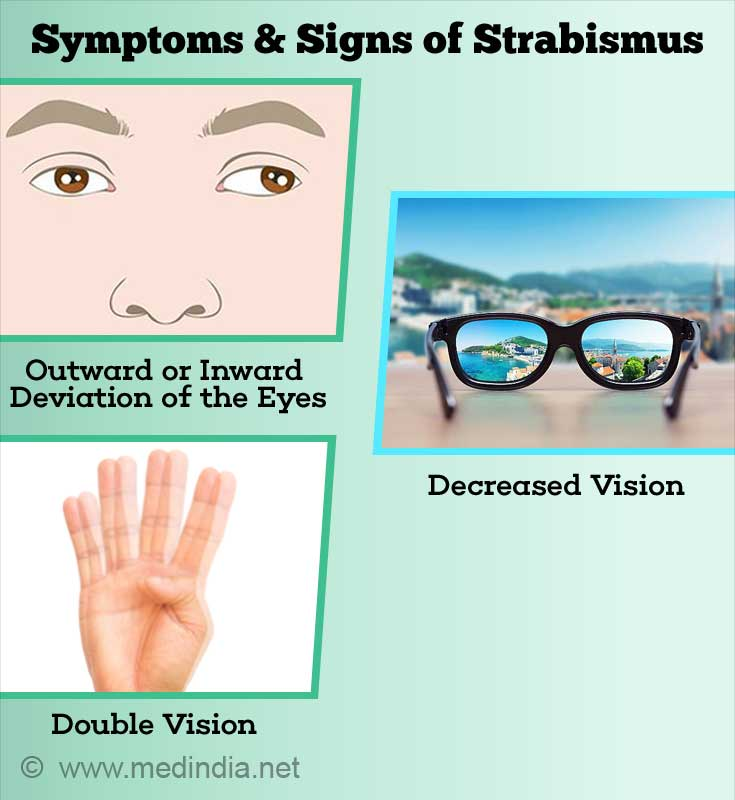 Symptoms & Signs of Strabismus