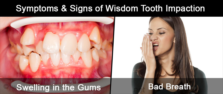 Symptoms & Signs of Wisdom Tooth Impaction
