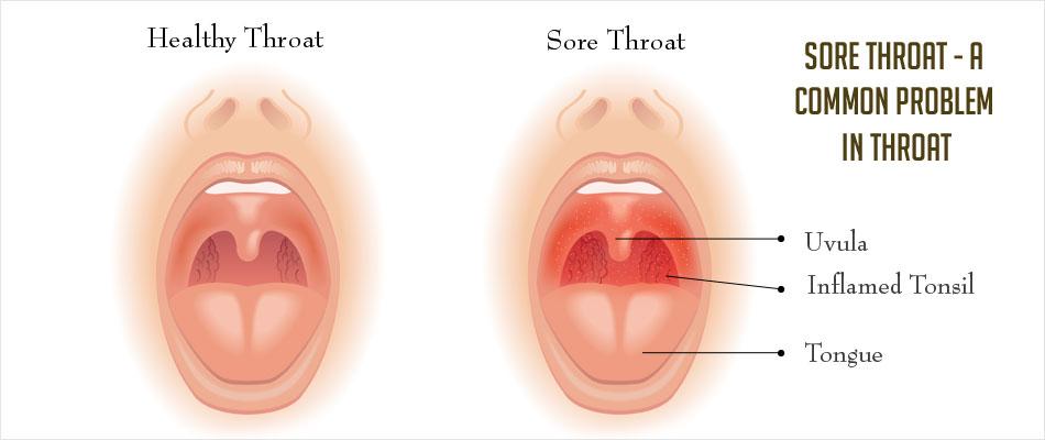 how to make my sore throat go away