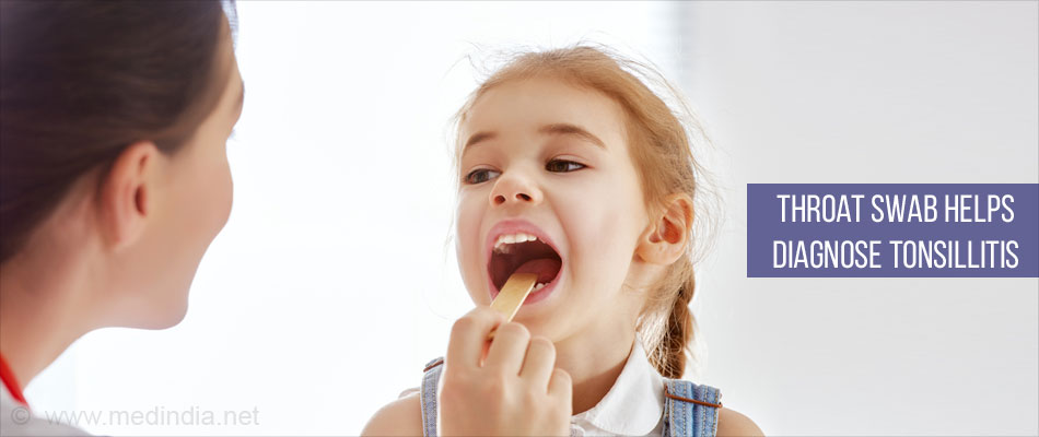 Throat Swab Helps Diagnose Tonsillitis