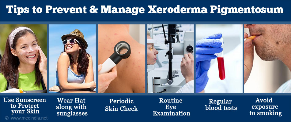 Tips to Prevent & Manage Xeroderma Pigmentosum