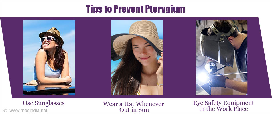 Tips to Prevent Pterygium