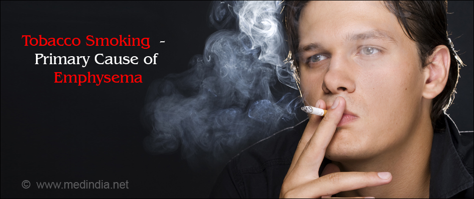 Tobacco Smoking - Primary Cause of Emphysema