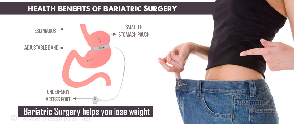 Top 15 Health Benefits of Bariatric Surgery