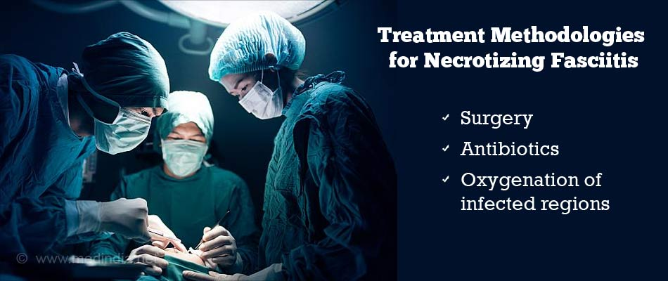 Treatment Methodologies for Necrotizing Fasciitis