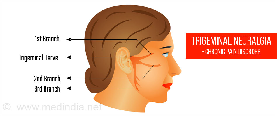 Trigeminal Neuralgia - Chronic Pain Disorder