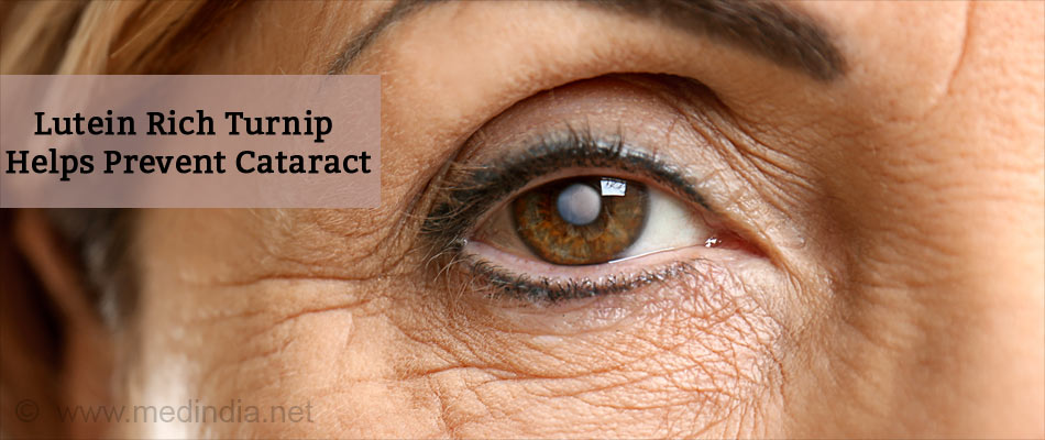 Lutein Rich Turnip Helps Prevent Cataract