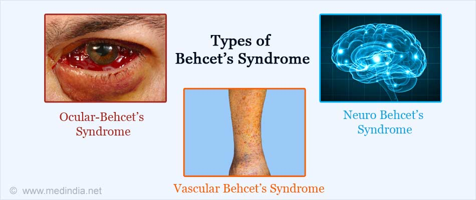 Types of Behcet's syndrome