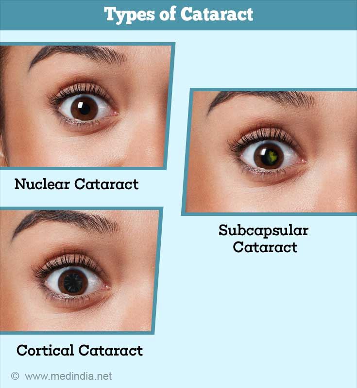 Types of Cataract