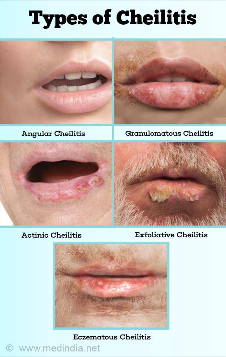 Cheilitis atopic dermatitis