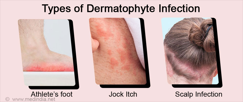 Types of Dermatophyte Infection