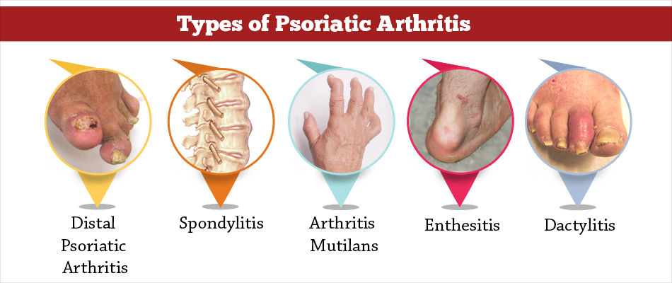 psoriasis treatment steroid injection