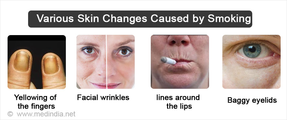 Various Skin Changes Caused By Smoking