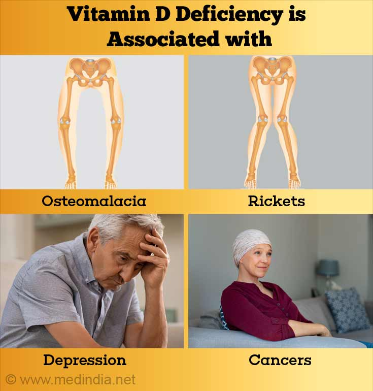 Vitamin D Defeciency Associated Conditions