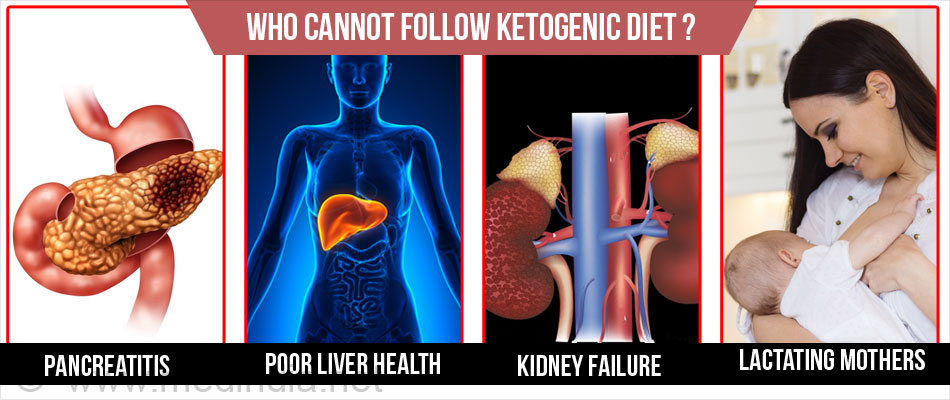 Who Cannot Follow Ketogenic Diet?