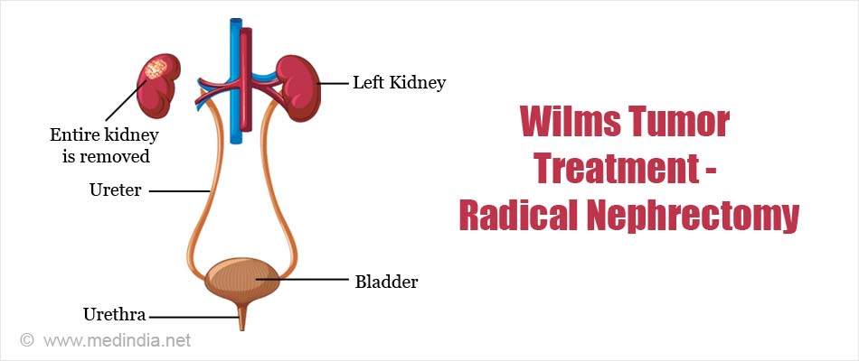 Wilms Tumor Treatment