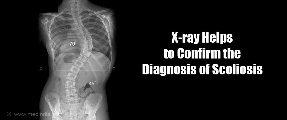 X-ray Helps to Confirm the Diagnosis of Scoliosis