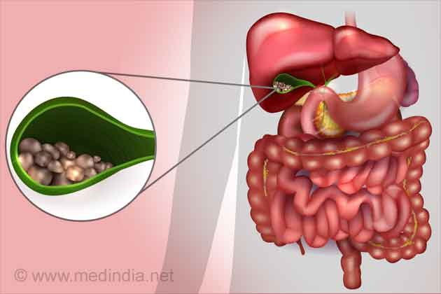 Gallstones - Treatment