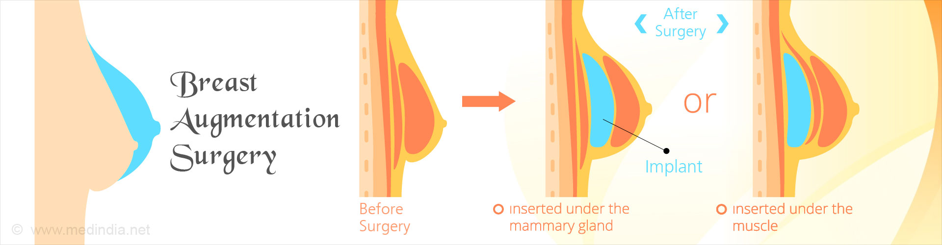 Breast Augmentation Surgery - Types, Indications, Surgical Procedure,  Complications