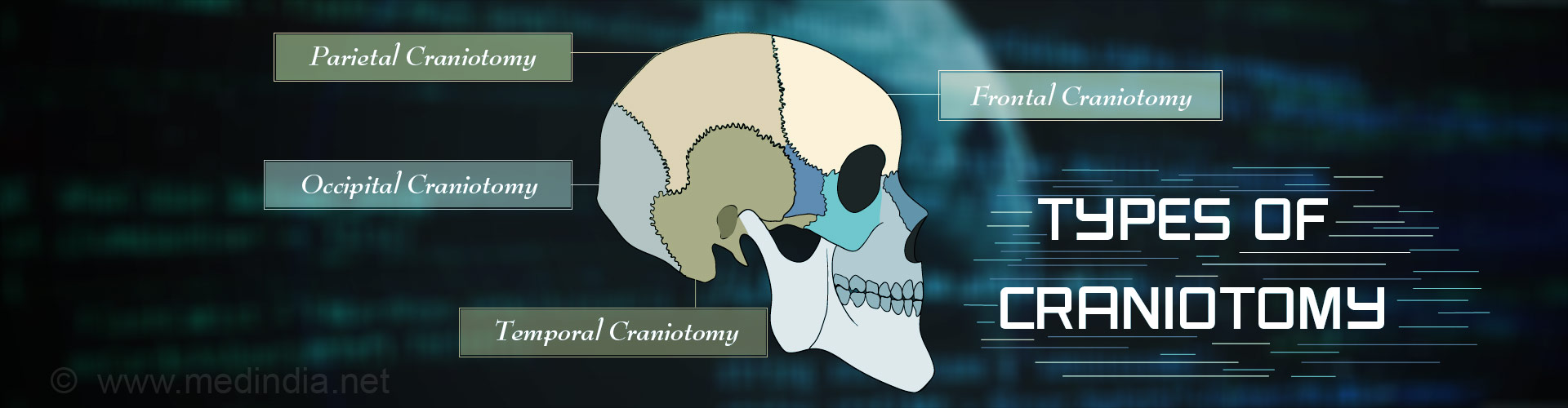 Craniotomy –Types, Indications, Procedure, Complications