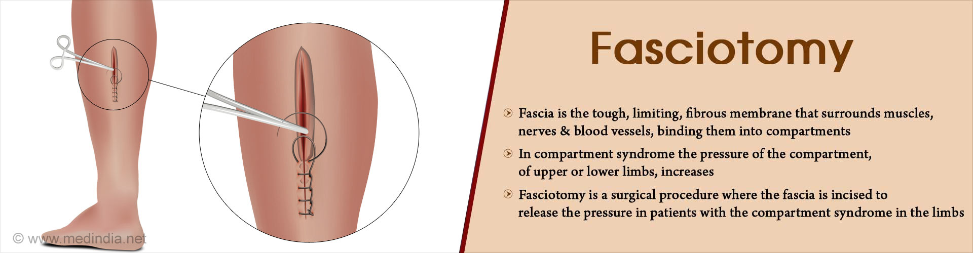 Fasciotomy - Surgical Procedure