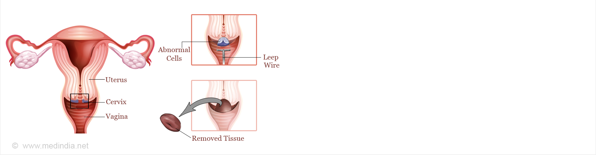 LEEP (Loop Electrosurgical Excision Procedure)