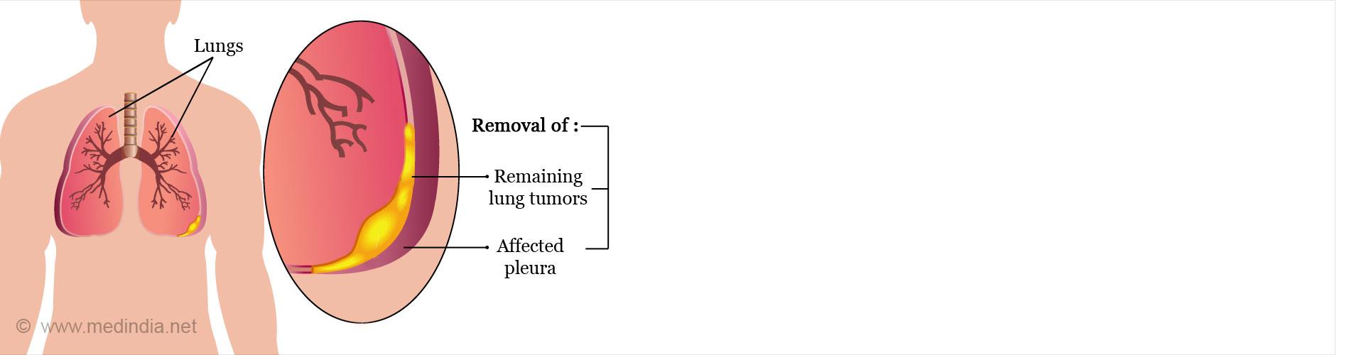 Pleurectomy