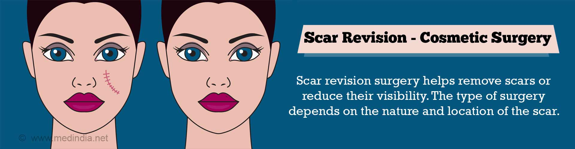 scar-revision-cosmetic-surgery