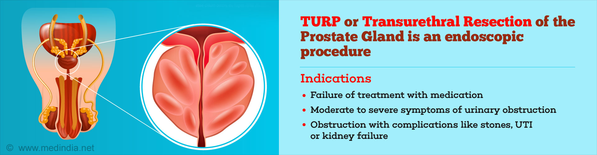 Trans-Urethral Resection of the Prostate (TURP)