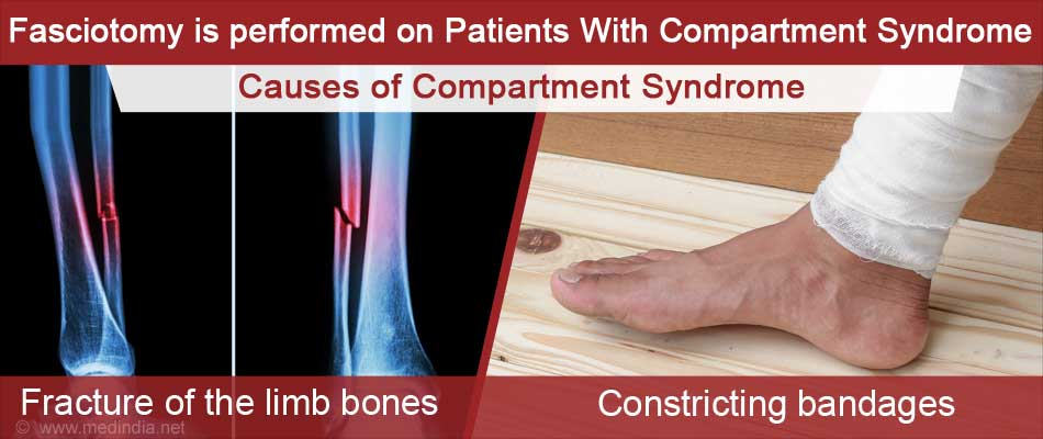 Causes of Acute Compartment Syndrome