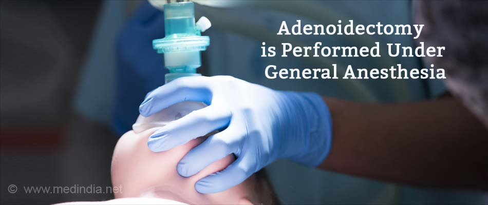 Adenoidectomy is Performed Under General Anesthesia