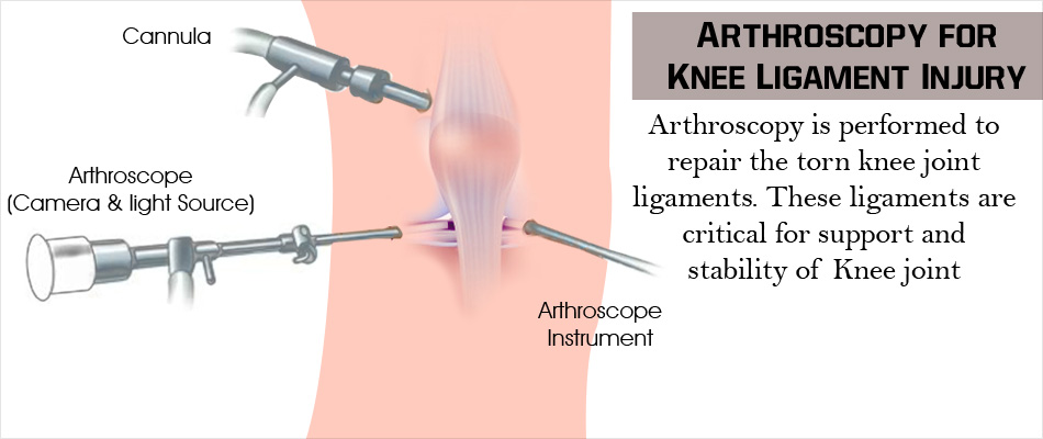Arthroscopy for Knee ligament Injury