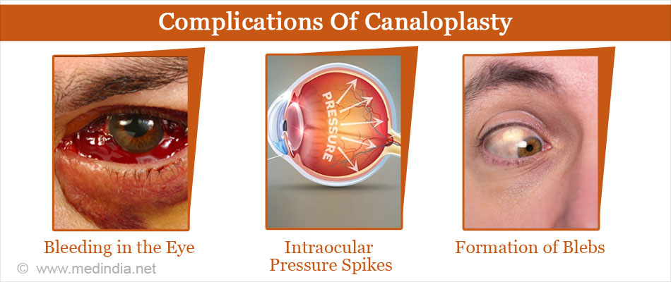 Complications of Canaloplasty