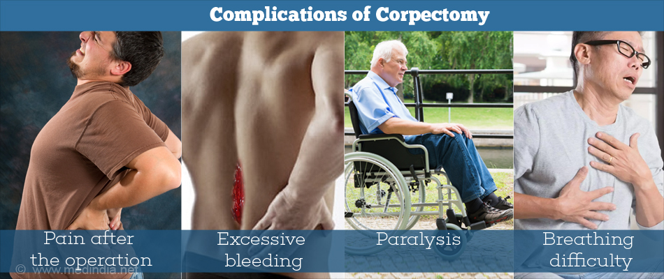 Complications of Corpectomy