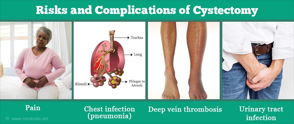 Complications of Cystectomy
