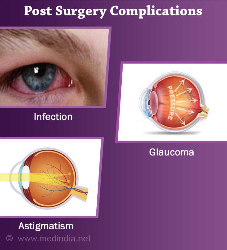 Complications that  Occur after Surgery